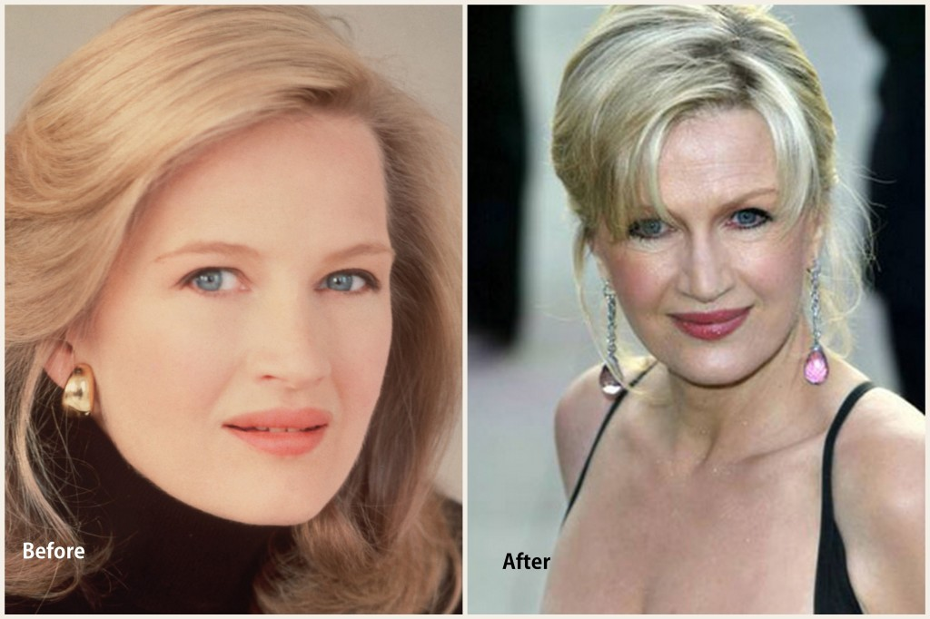 Diane Swayer Plastic Surgery Diane Swayer Before and After photo