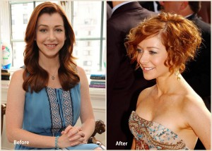 Alyson Hannigan Plastic Surgery Alyson Hannigan before and after photo