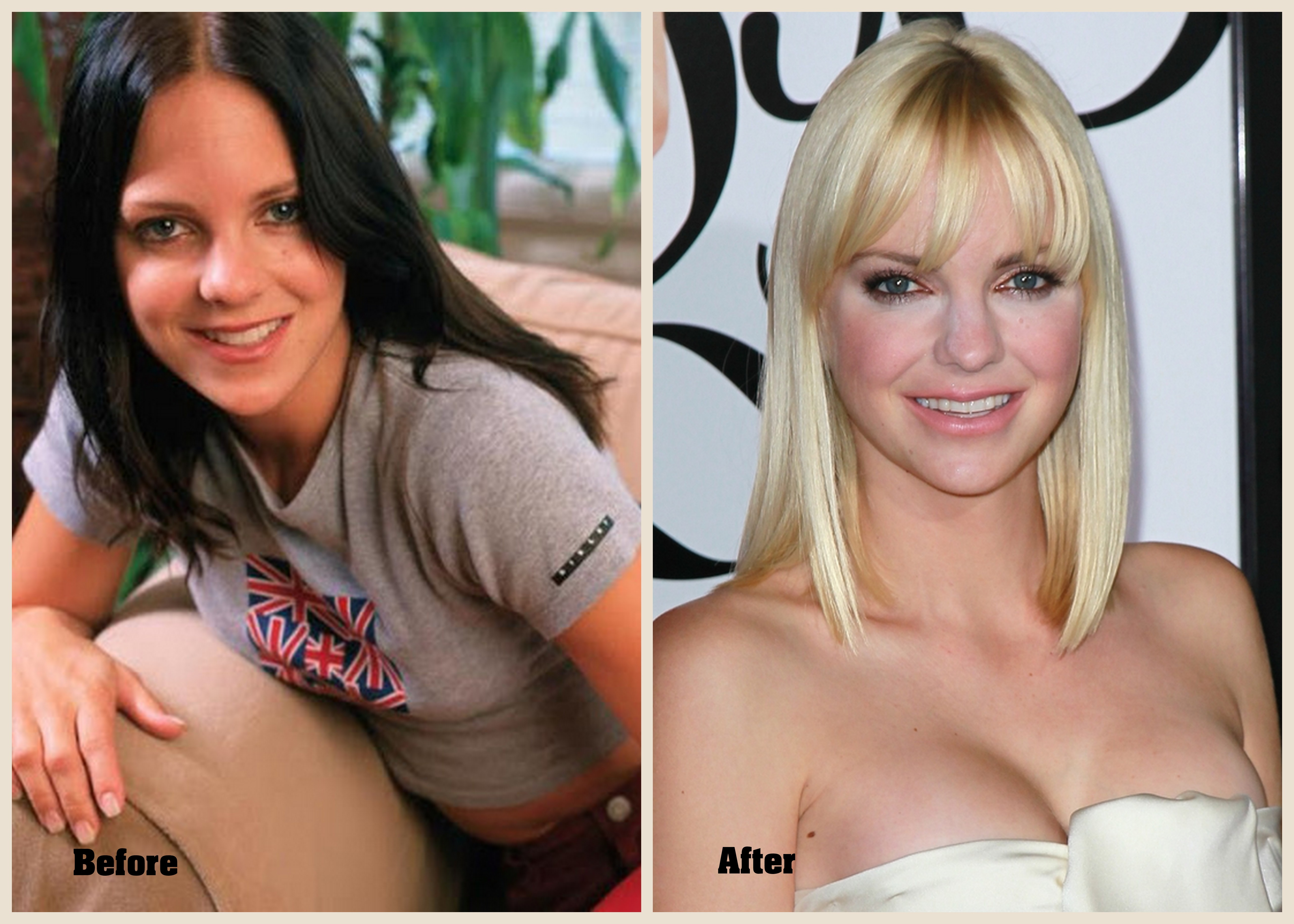 Anna Faris Plastic surgery Anna Faris before and after photo