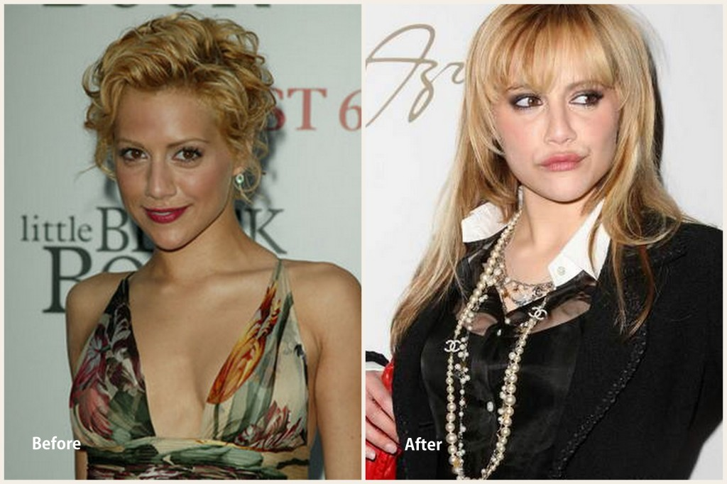 Britany Murphy Plastic Surgery Britany Murphy Before and After photo