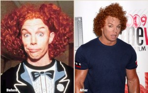 Carrot Top Plastic surgery Before and After Photo