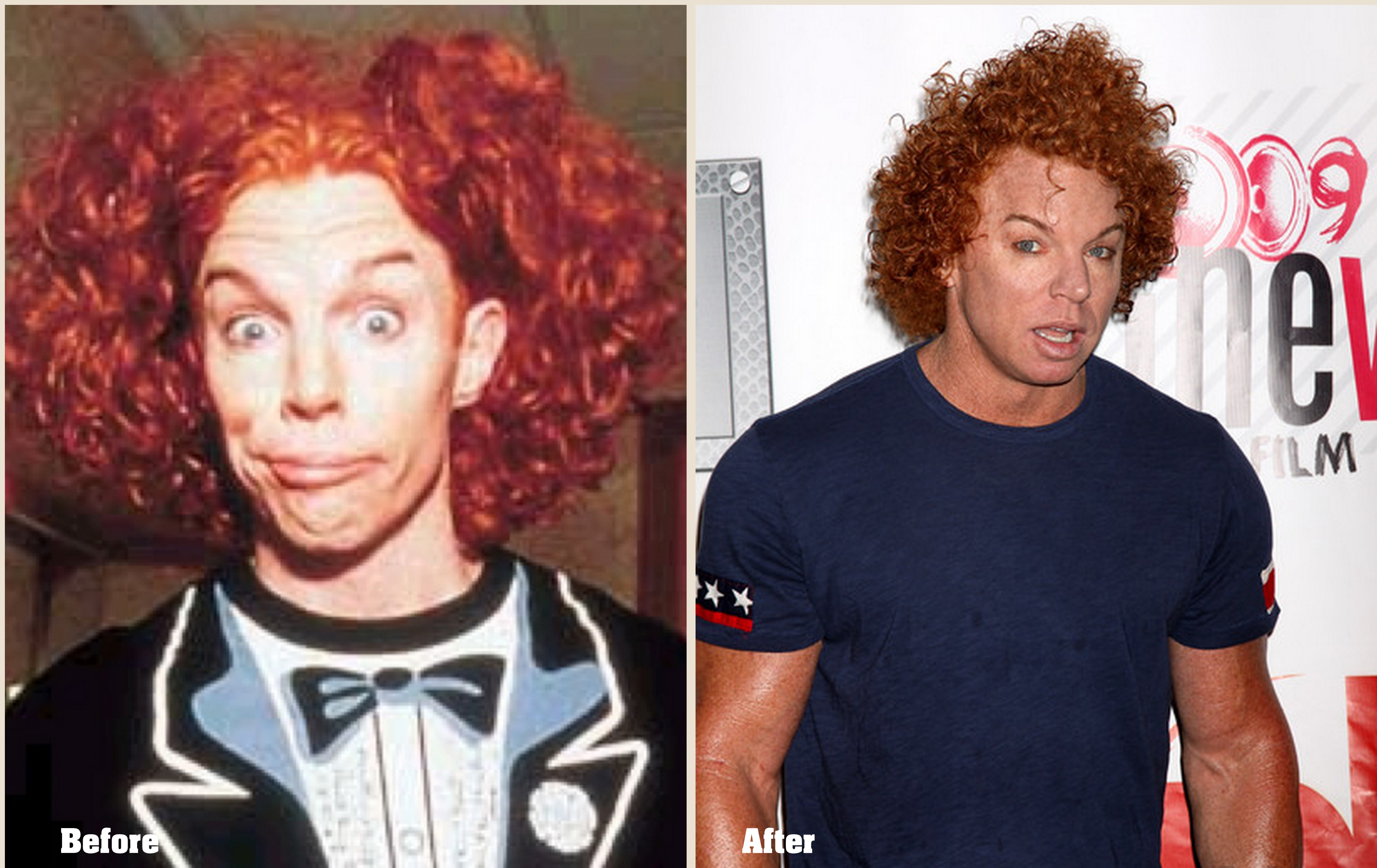 Carrot Top Plastic Surgery Before And After Latest Photos