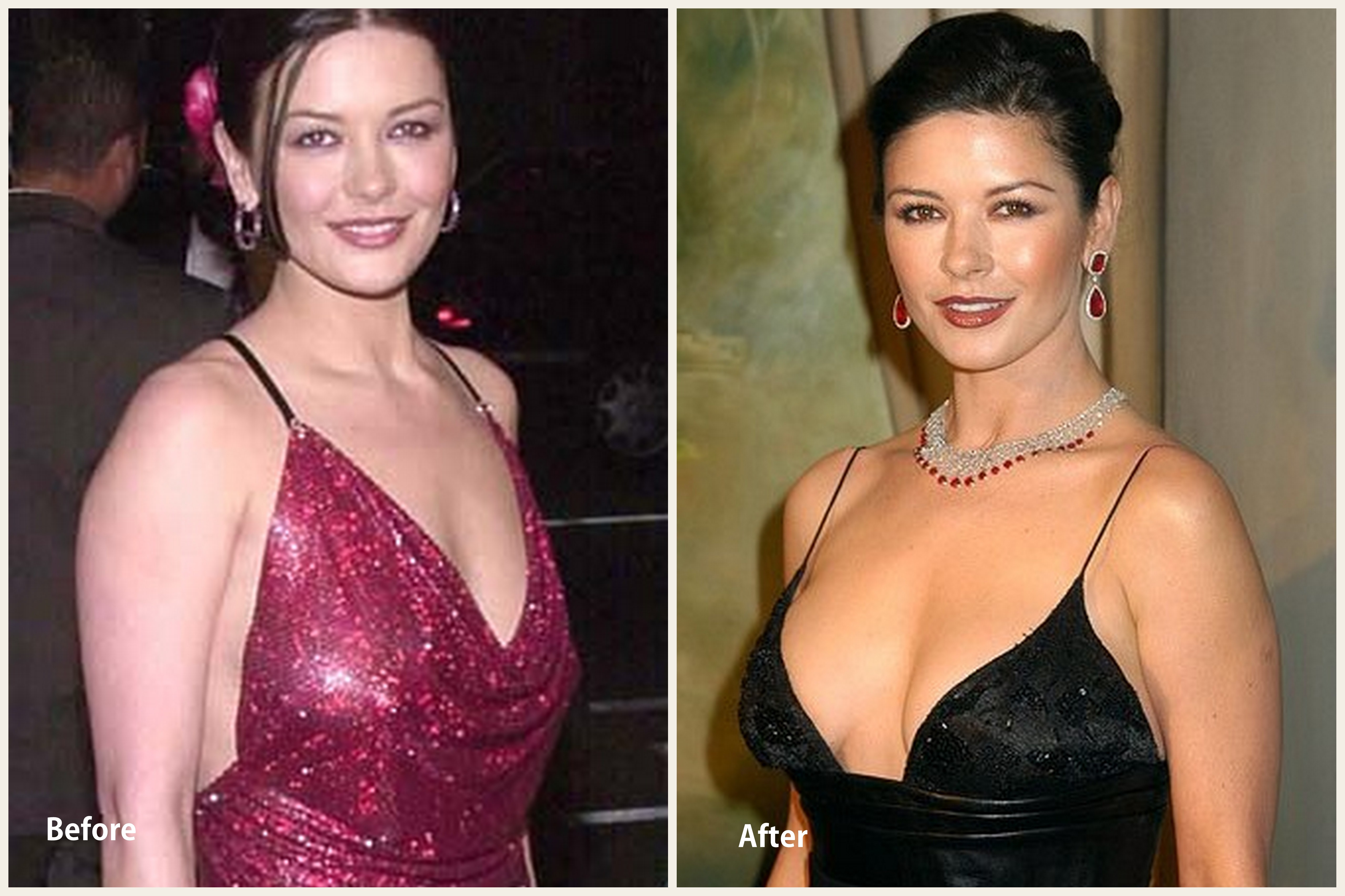 Catherine Zeta Jones Plastic surgery Catherine Zeta Jones before and after photo