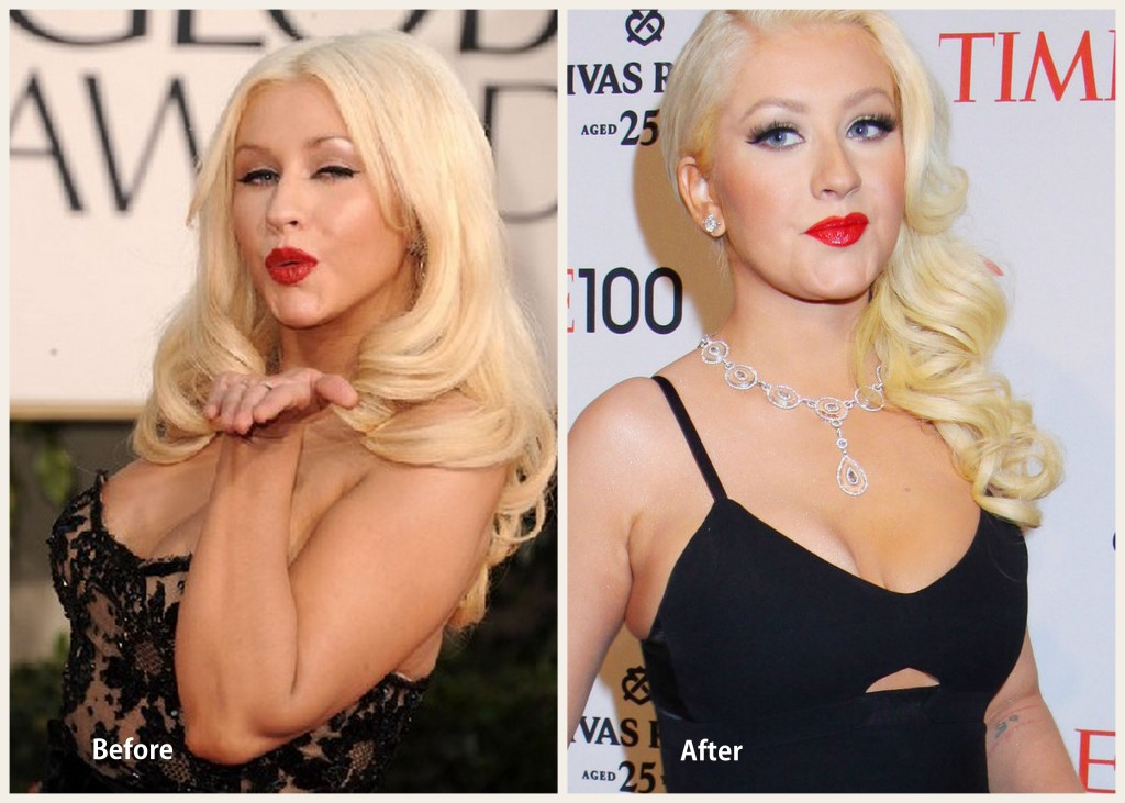 Christina Aguilera Plastic Surgery Christina Aguilera Before and After Photo