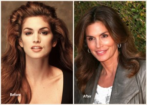 Cindy Crawford Plastic Surgery Before and After Photo