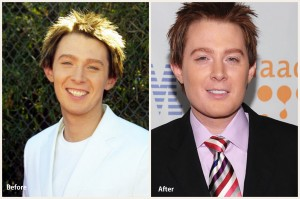 Clay Aiken Plastic Surgery Clay Aiken Before and After Photo