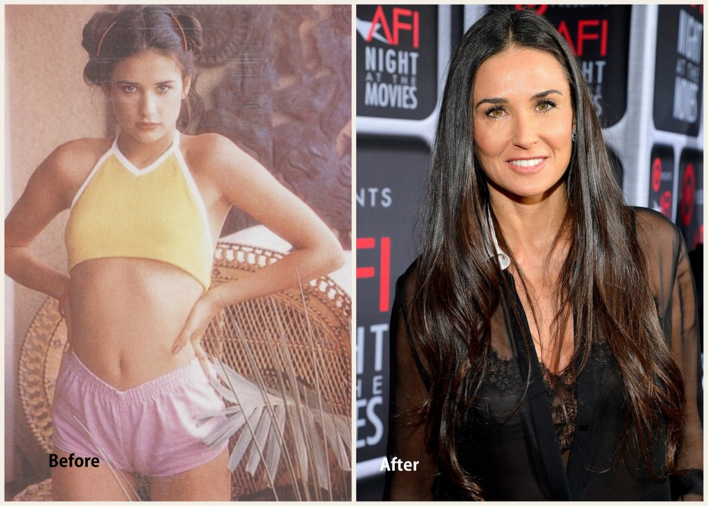 Demi Moore Plastic surgery Demi Moore before and after photo