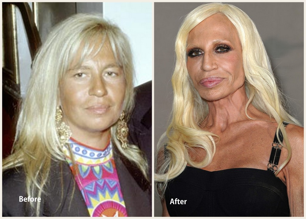 Donatella Versace Plastic Surgery Donatella Versace Before and after photo