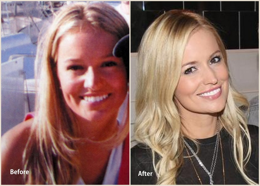 Emily Maynard Plastic surgery  Emily Maynard Before and after photo