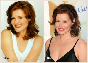 Geena Davis Plastic Surgery Before and After Photo