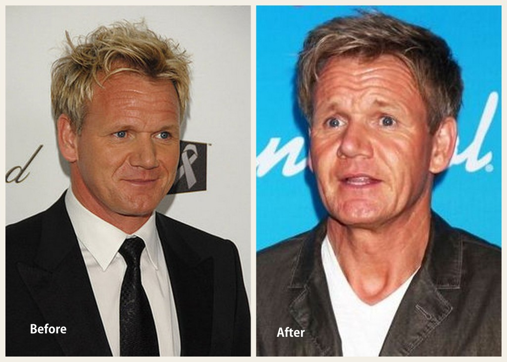 Gordon Ramsay Plastic Surgery Gordon Ramsay Before and After Photo