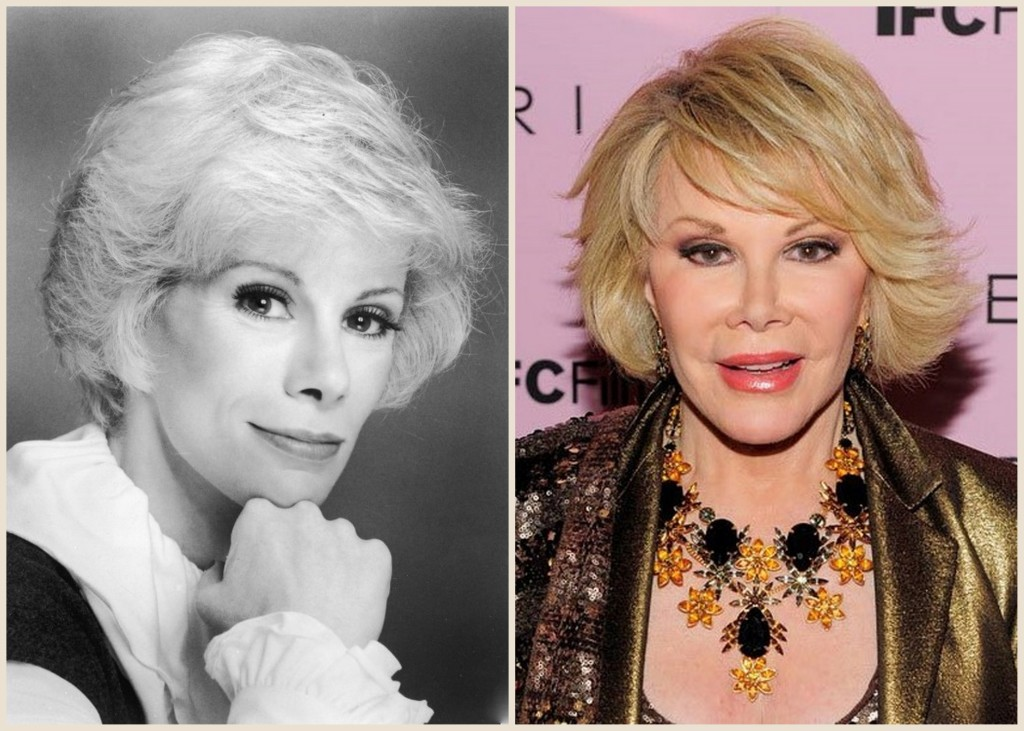 Joan Rivers Plastic Surgery Joan Rivers before and after photo