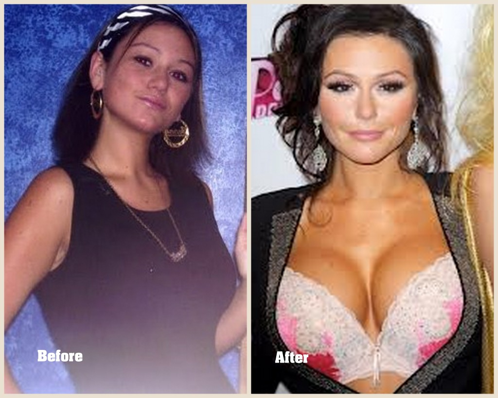 Jwoww Plastic surgery before and after, Jwoww before and after picture