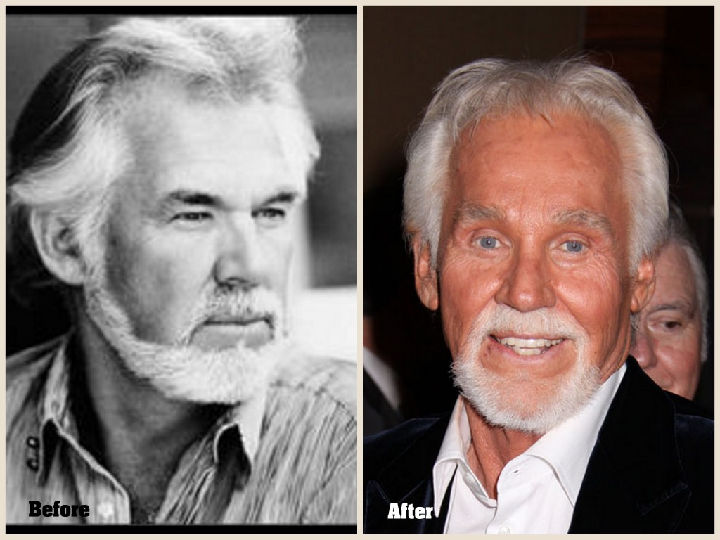 Kenny Rogers Plastic surgery Kenny Rogers before and after Photo