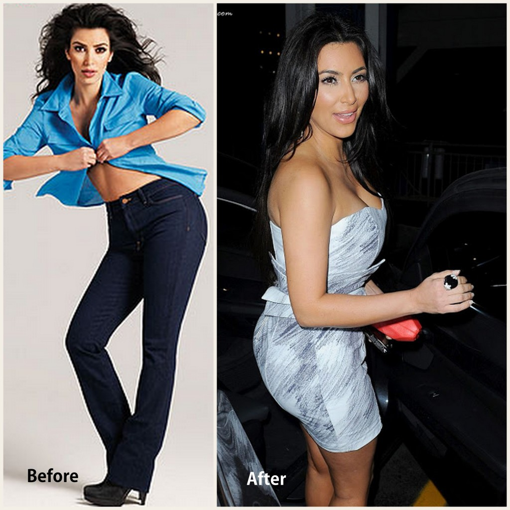 Kim Kardashian Plastic Surgery Kim Kardashian Before and After photo