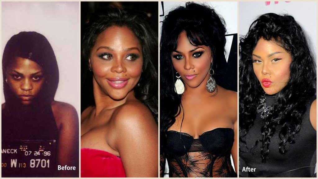 Lil Kim Plastic Surgery Lil Kim Before and after photo