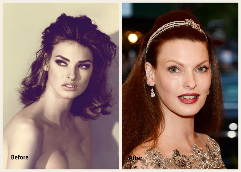 Linda Evangelista Plastic Surgery Linda Evangelista Before and After Photo