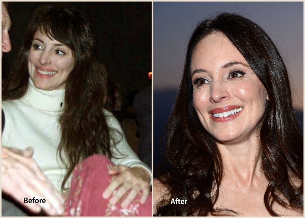 Madeleine Stowe Plastic surgery Madeleine Stowe Before and After photo