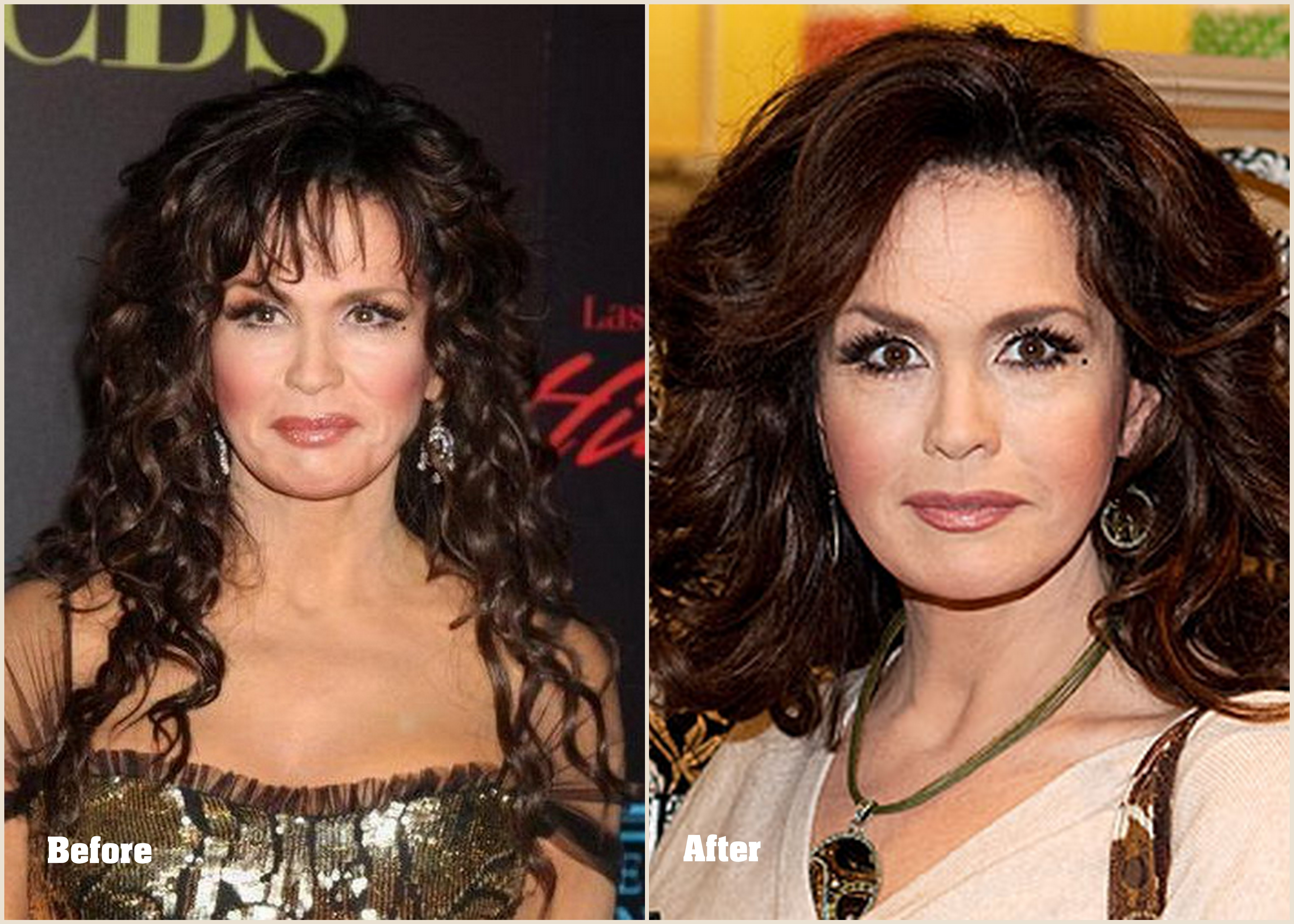 Marie Osmond plastic surgery Marie Osmond before and after Photo