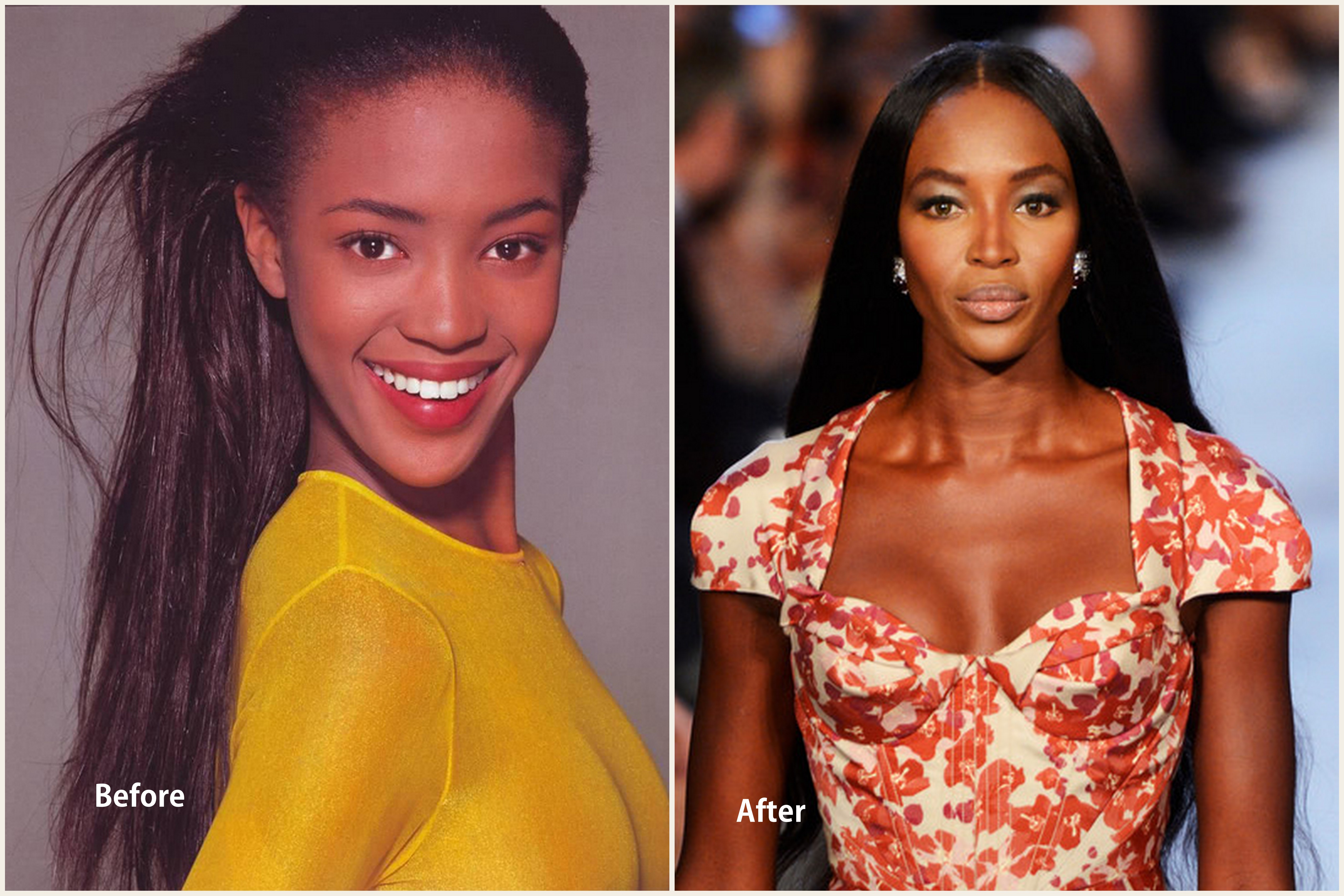 Naomi Campbell Plastic Surgery Naomi Campbell before and after photo