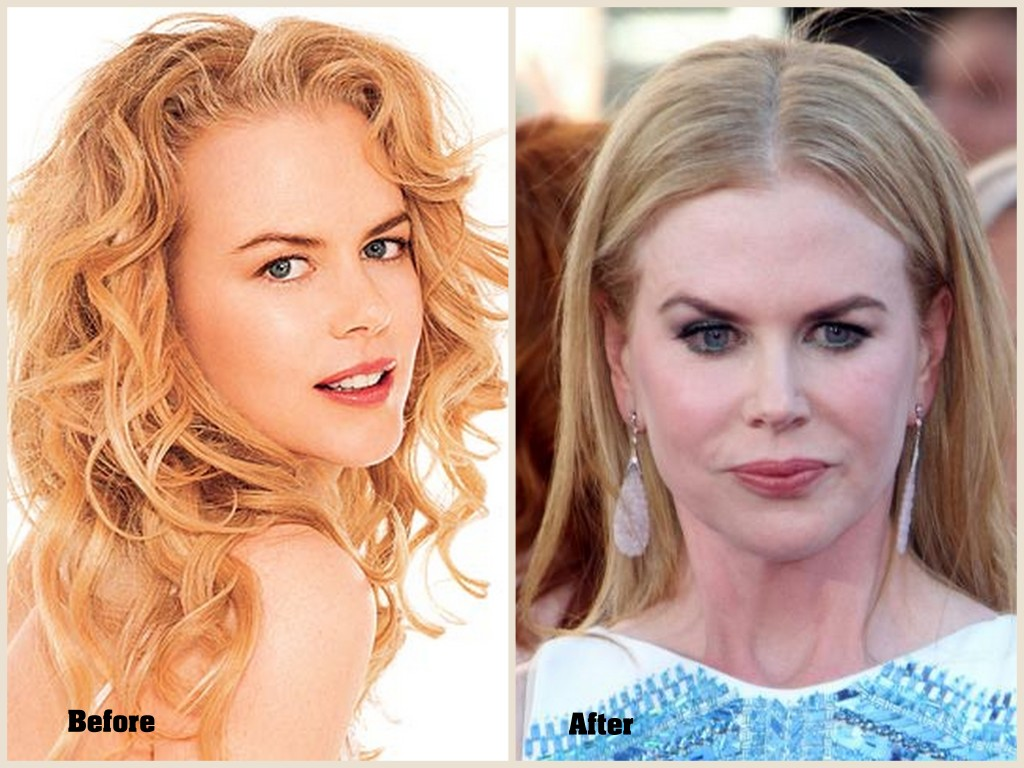Nicole Kidman Plastic Surgery, Nicole Kidman before and after plastic surgery pic