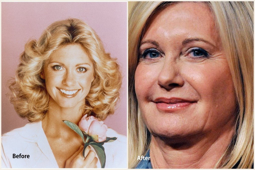 Olivia Newton John Plastic Surgery Olivia Newton John Before and After photo
