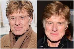Robert Redford Plastic Surgery Before and After Photo