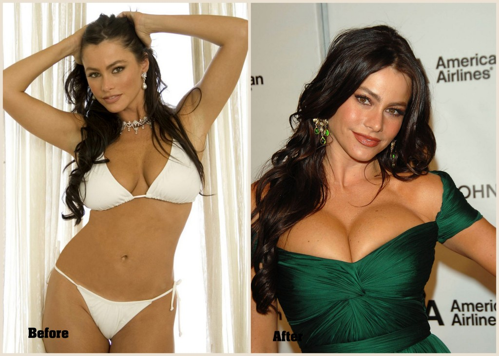 Sophia Vergara plastic surgery breast, Sophia Vergara before and after plastic surgery photo