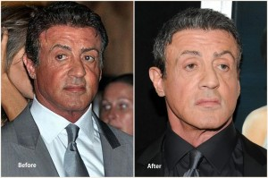 Sylvester Stallone Plastic Surgery Before and After Showing Neck and Facelift