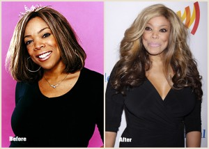 Wendy Williams Plastic Surgery Wendy Williams before and after photo