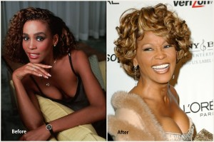 Whitney Houston Plastic Surgery Before and After Photo