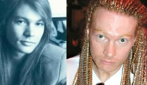 Axl Rose Plastic Surgey Before and After Photo
