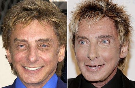 Barry Manilow plastic surgery Barry Manilow before and after photo