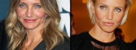 Cameron Diaz plastic surgery Cameron Diaz before and after photo