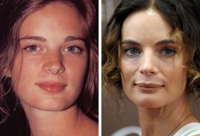 Gabrielle Anwar plastic surgery Gabrielle Anwar before and after photo