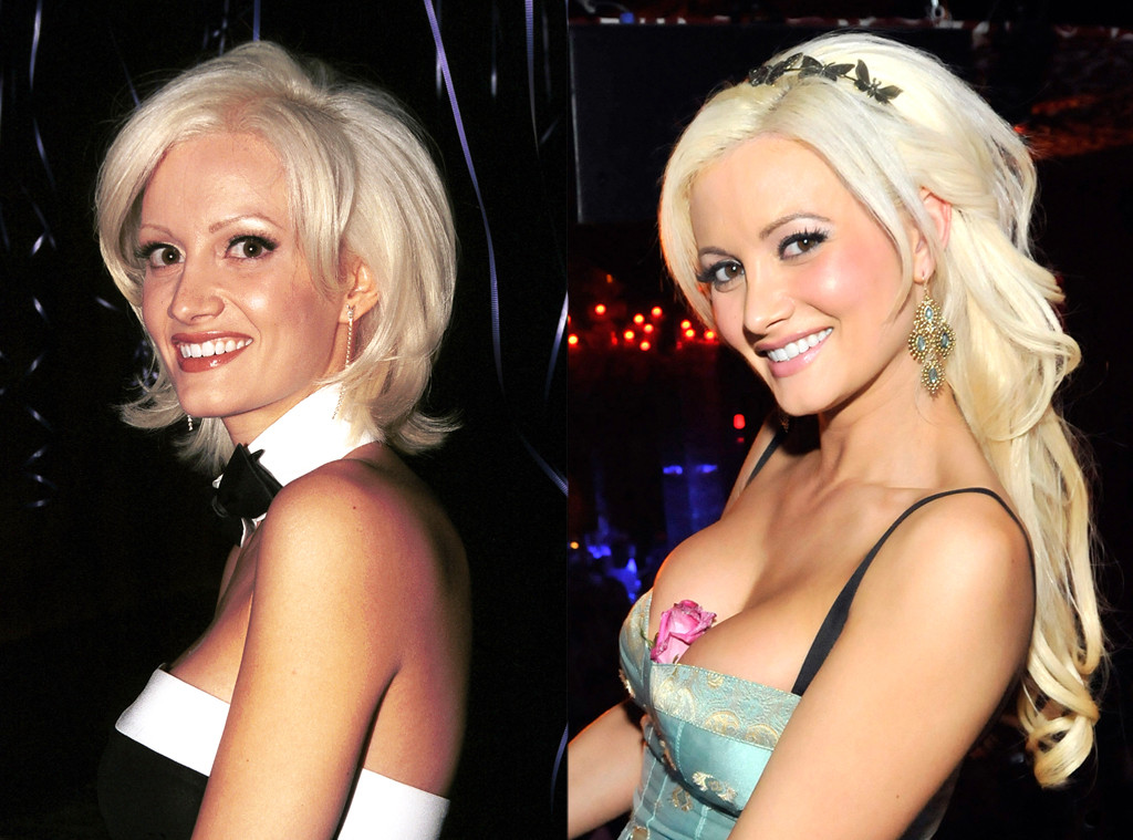 Holly Madison plastic surgery Holly Madison before and after photo