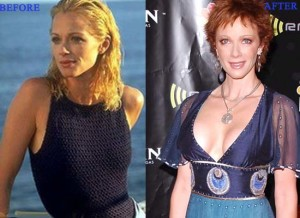 Lauren Holly Plastic Surgery Before and After Photo