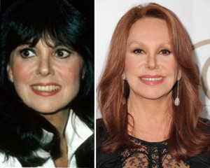 Marlo Thomas Plastic Surgery Before and After Nose Job Photo