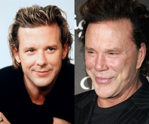 Mickey Rourke Plastic Surgery Before and After Photo
