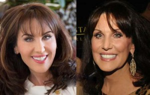 Robin McGraw Plastic Surgery Before and After Photo
