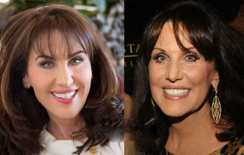 Robin McGraw plastic surgery Robin McGraw before and after photo