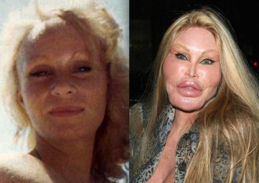 catwoman plastic surgery catwoman before and after photo