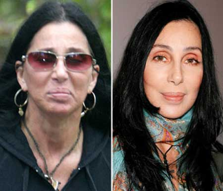 cher plastic surgery cher before and after photo