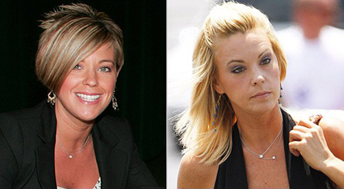 Kate Gosselin plastic surgery Kate Gosselin before and after photo