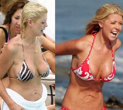 Tara Reid plastic surgery Tara Reid before and after photo