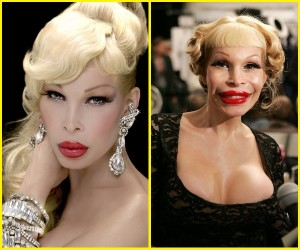 amanda lepore plastic surgery disaster