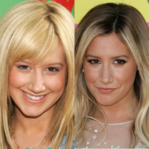 ashley tisdale befpre and after photo
