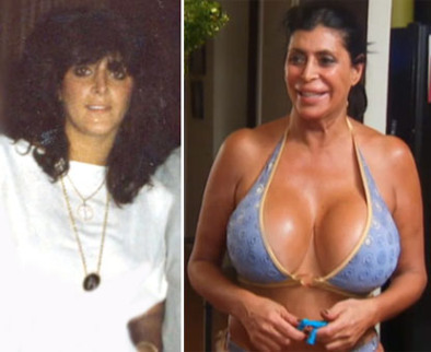 big ang before and after photo
