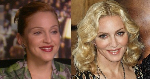 madonna before and after photo