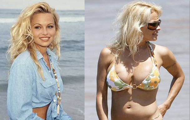 Pamela-Anderson-Before-and-After-Plastic-Surgery-Photos